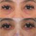 Mengurangi bengkak setelah operasi kantung mata